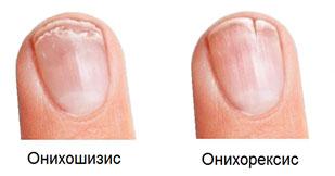 Ониходистрофия: причины, виды, подход к лечению фото