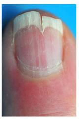 Онихорексис или трещина вдоль ногтя фото