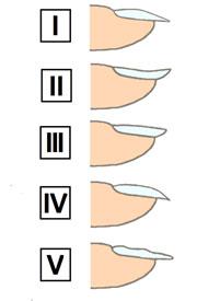 Платонихия или плоские ногти: как исправить форму? фото